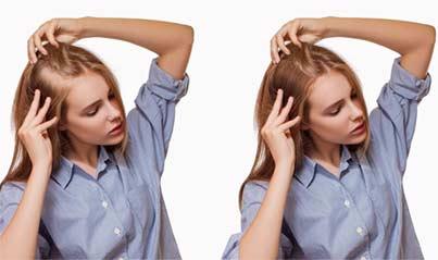 se-puede-trasplantar-el-cabello-a-las-mujeres